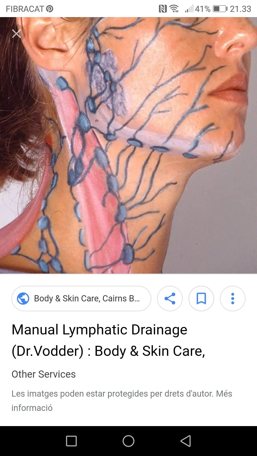 Photo of Lymph drainage and map of face!