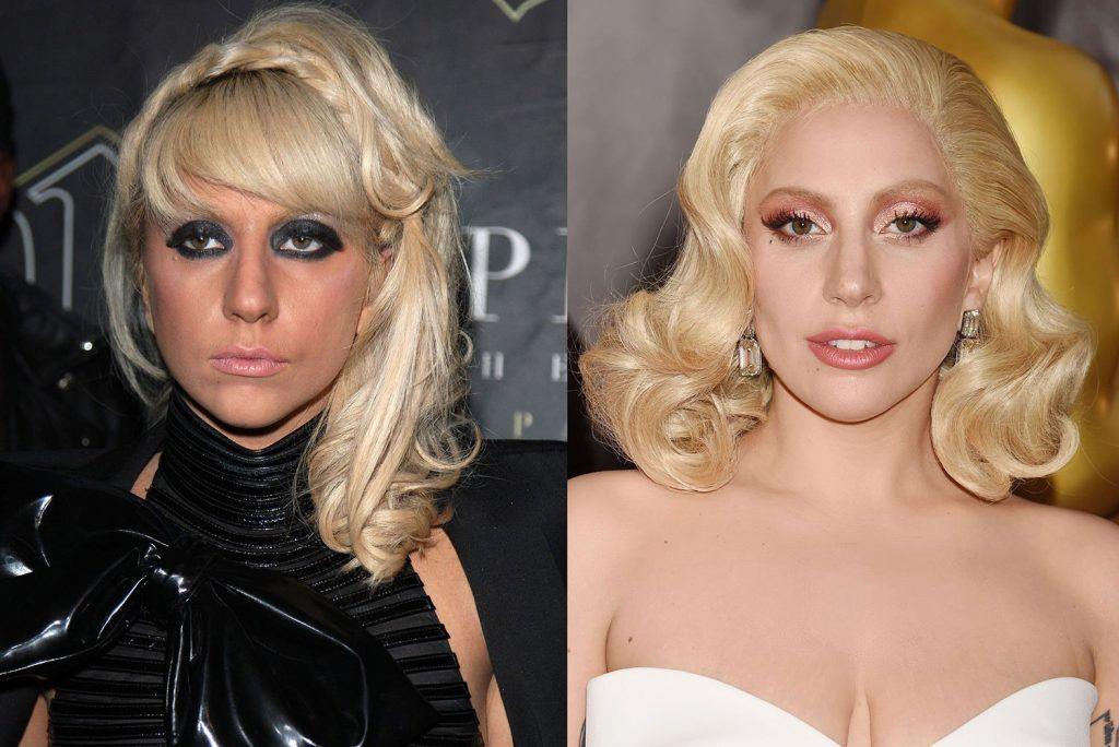 Lady gaga botox on face and a nose job before and