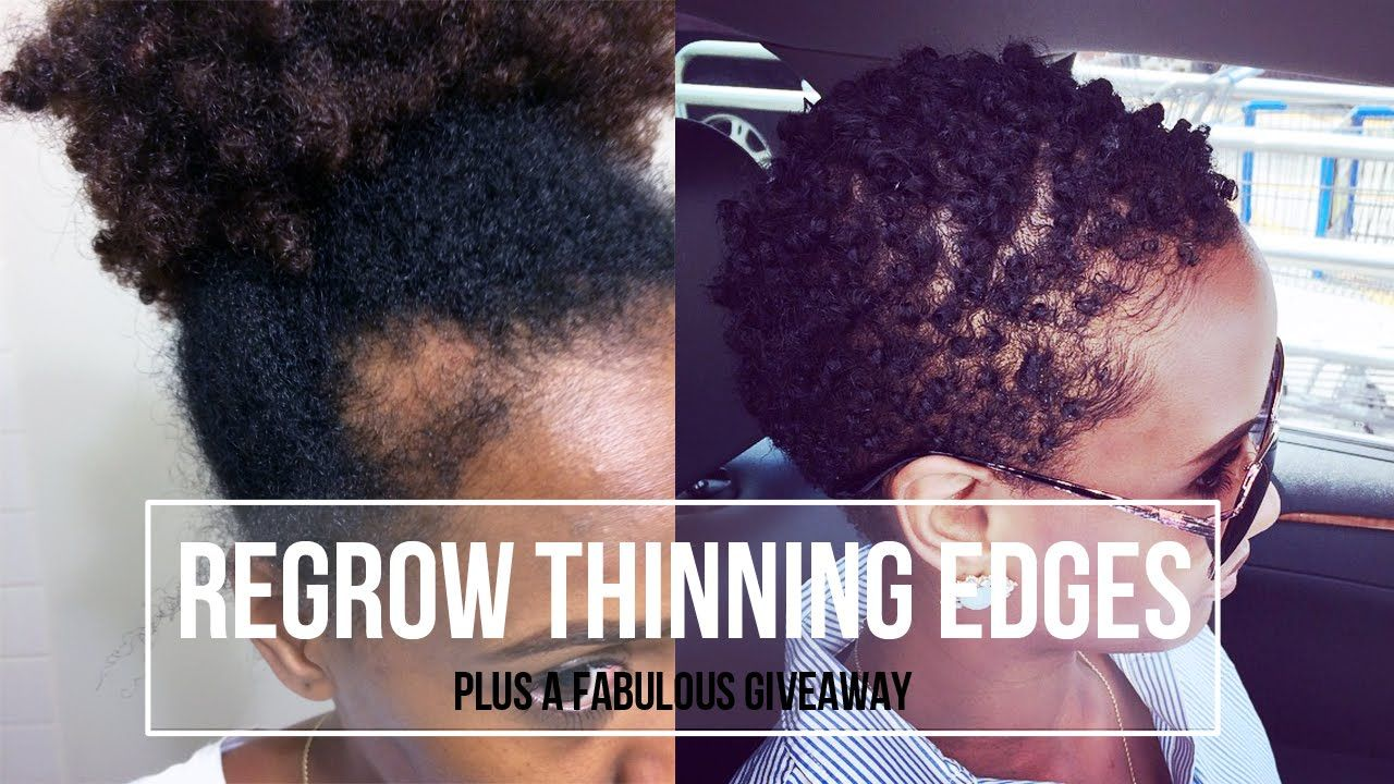 How To Regrow Thinning Edges Giveaway Christian Byshe