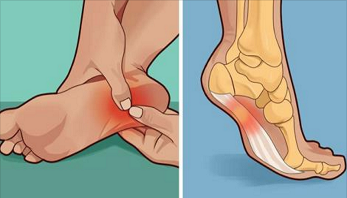 Are You Suffering From Pain In The Feet? Here's How To Remove Pain In A Natural And Easy Way