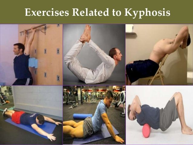 Exercises Related To Kyphosis Exercises Related To Lordosis Kyphosis Exercises Posture Exercises Postures