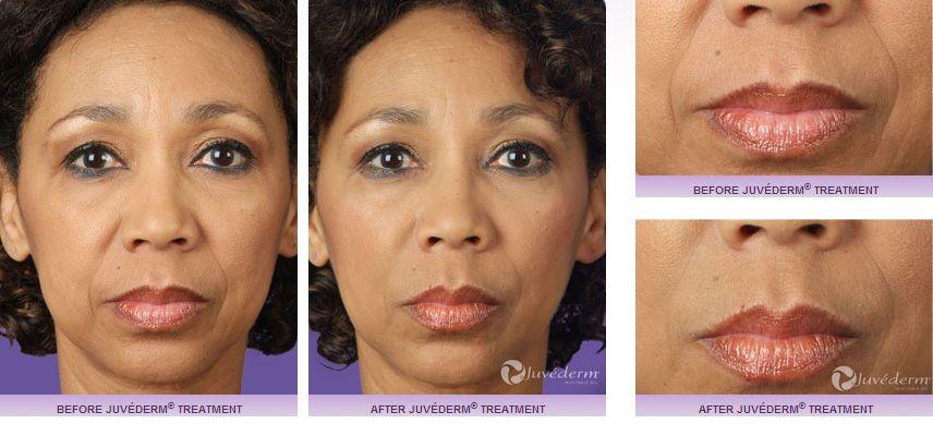 Botox and Facial Filler | Bellafill in Richmond