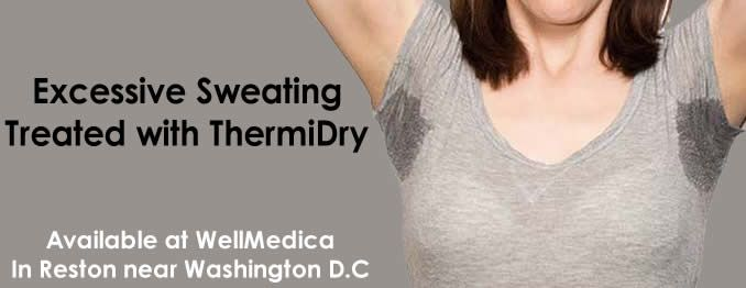 ThermiDry for Excessive Sweating | Procedures | Excessive