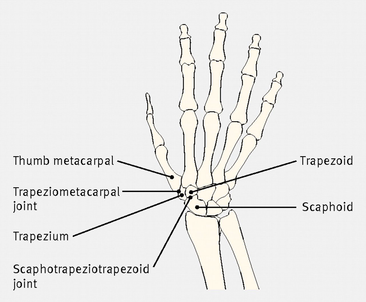 diagram of the bones of the hand and carpus showing the trapeziometacarpal and scaphotrapeziotrapezoid joints where basal thumb arthritis occurs [ 1280 x 1054 Pixel ]