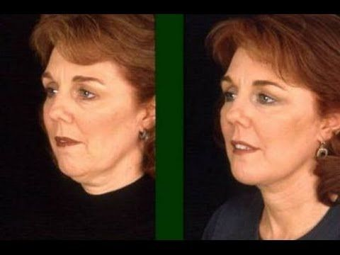 ▷ Try This Double Chin Exercise To Look Younger: Massage Remedy To