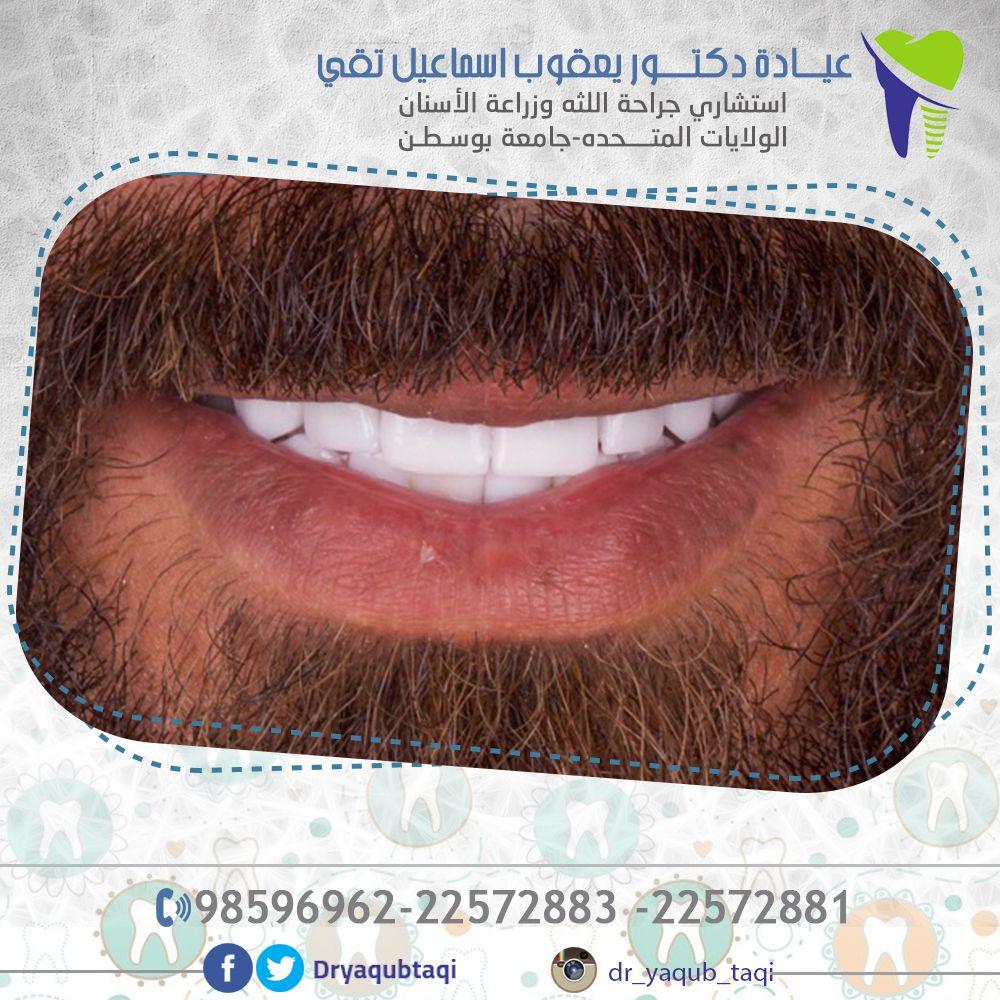 تسوس الاسنان التهابات اللثة وصعوبة تنظيف الاسنان وغيرها من المشاكل التي تسببها فقدان الاسنان نقوم بزراعة الاسنان باحترافية وانسي السعر يوجد Visor Fashion