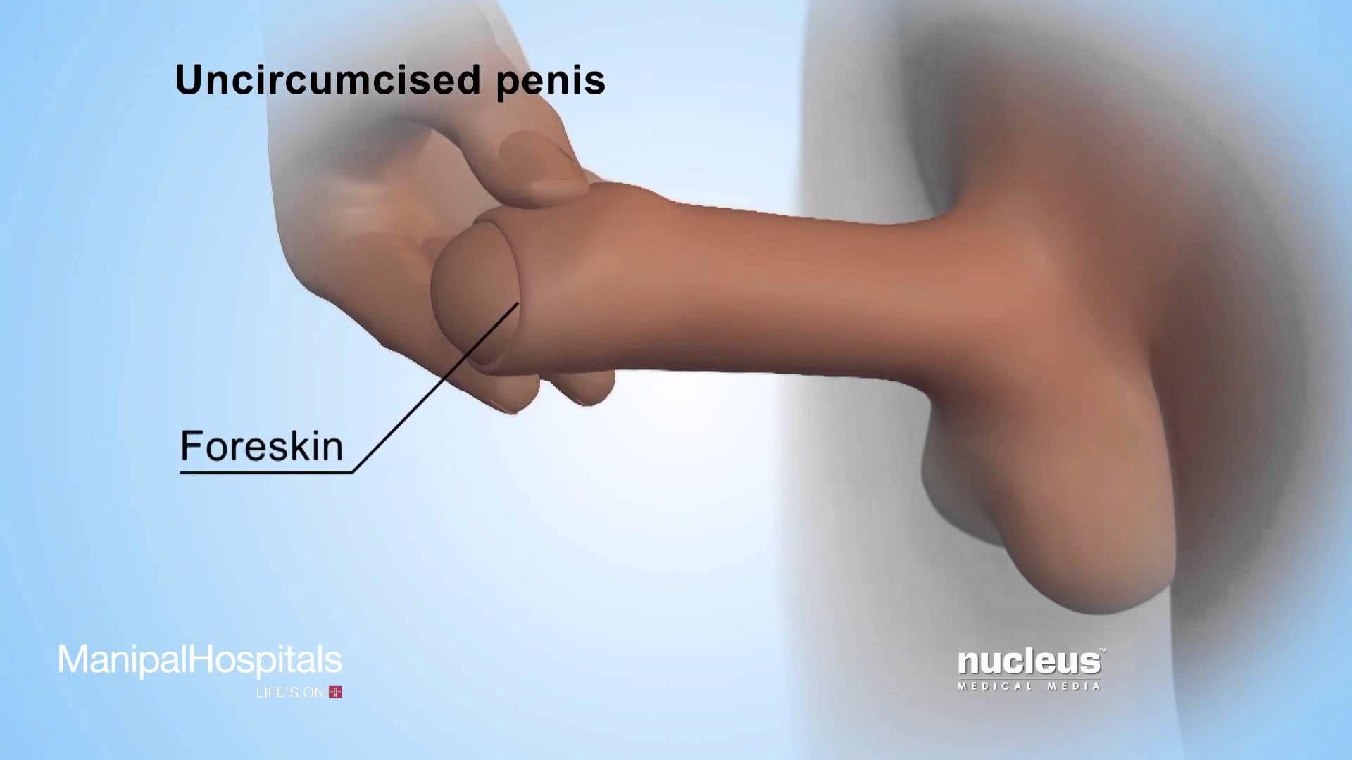 from Rodney gay men in condoms videos