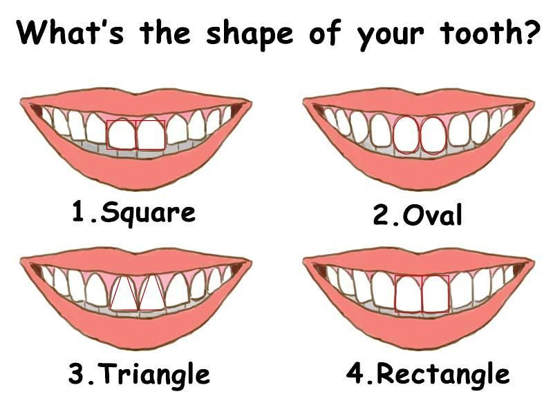 What shape are You?? #smile #teeth #teethwhitening #denplan #whitenteeth #whitening #dentist #dentistry #dentistrymyworld #dentistrylife #dentist #dental #hygienist #dentalimplants #sixmonthsmilebraces #suttoncoldfield #birmingham #westmidlands #smile #teeth #uk #instagood #instagram #fun #happy by sutton_aesthetic_dentistry Our Dental Bridges Page: http://www.myimagedental.com/services/cosmetic-dentistry/bridges/ Other Cosmetic Dentistry services we offer…
