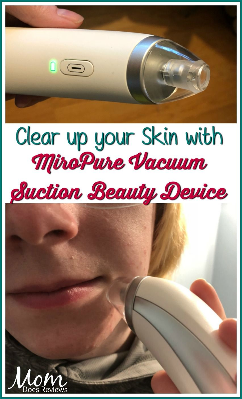Clear Up Your Skin With Miropure Vacuum Suction Beauty Device Dana A Acne Treatment Megachristmas18 Review