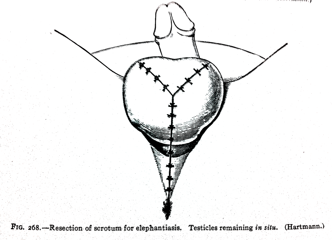 Resection of scrotum for elephantiasis. Testicles remaining in situ ...