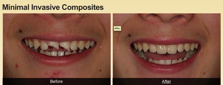 Example of my work #creatingsmiles #healthyteeth #dental #cosmeticdentistry