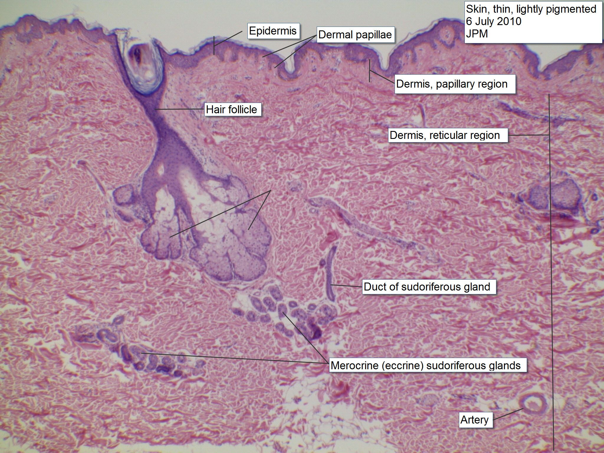 Microscope Images Pacinian Corpuscle