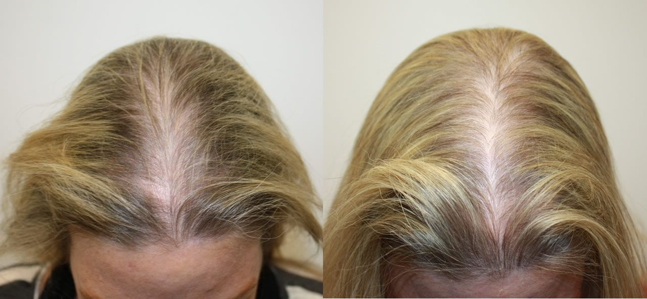 Stem Scalp Before After Female Hairstyles For Thin Hair Hair