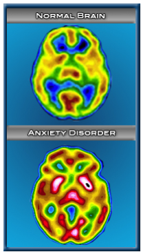 anxiety disorder and the brain essay A summary of anxiety disorders in inefficient processing of serotonin may also contribute to anxiety brain the 25 worst ways to start your college essay.