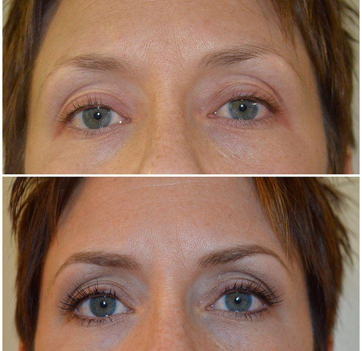 Multi tonal eyeliner tattoo permanent makeup eyeliner