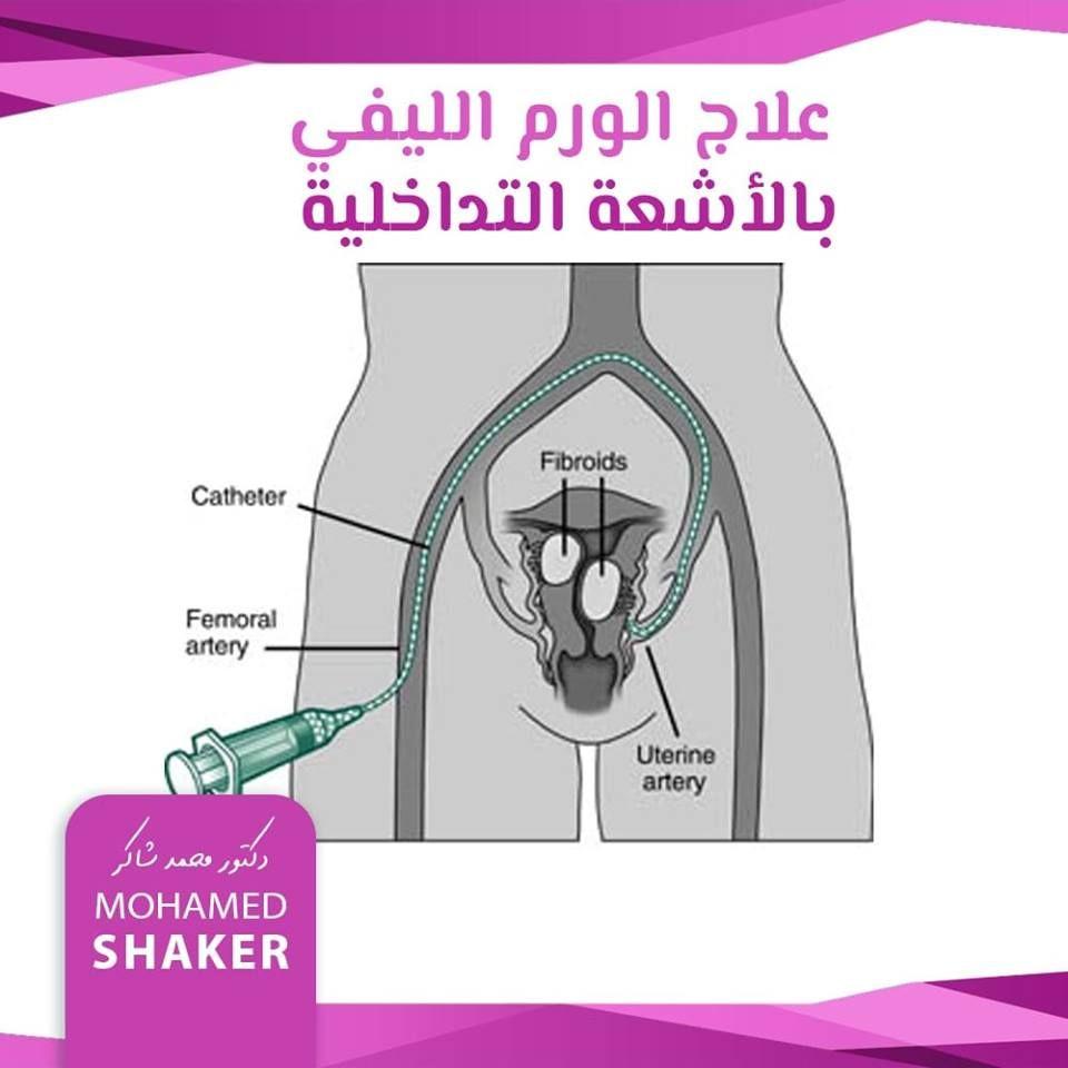 أورام الرحم الليفية Fibroids Catheter Arteries