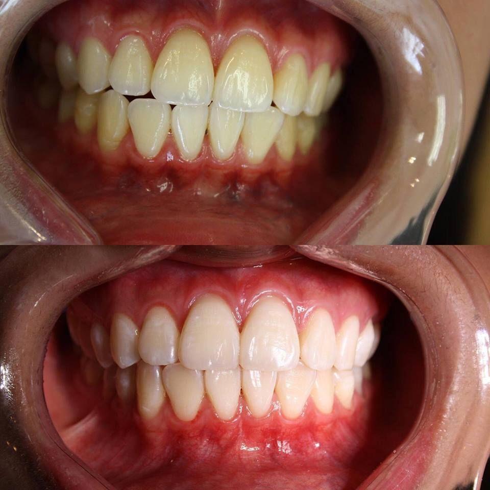 Pin on dental surgery the dentist