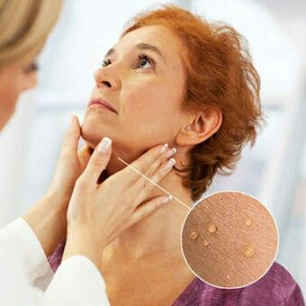 How To Remove Skin Tags - http://tiphero.com/skin-tag-facts-removal-myths/?ref=sb