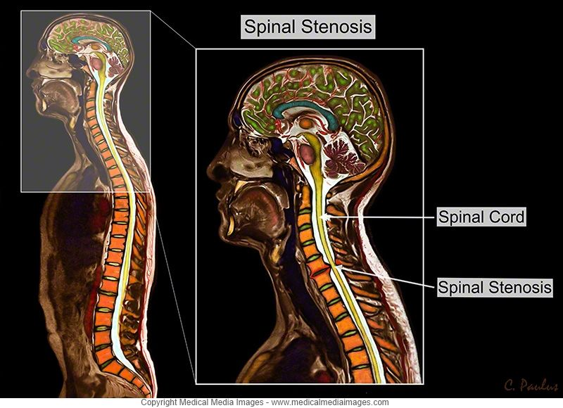 Spinal stenosis of the neck cervical spine shown on a color mri a color mri showing cervical spinal stenosis with annotations a novel advanced visual tool to see and understand anatomy disease and surgery created by ccuart Image collections