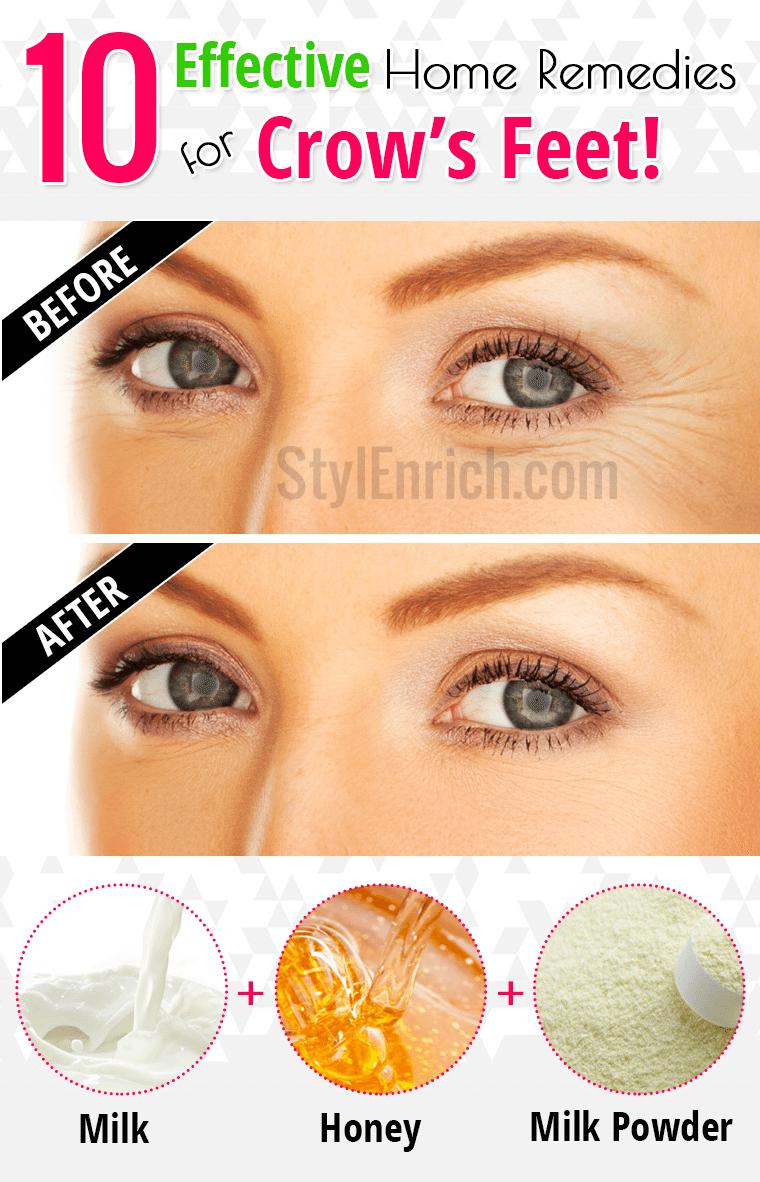 0a7625ca0b5f6a34b948a420d355c63c - How To Get Rid Of Eye Wrinkles And Crow S Feet