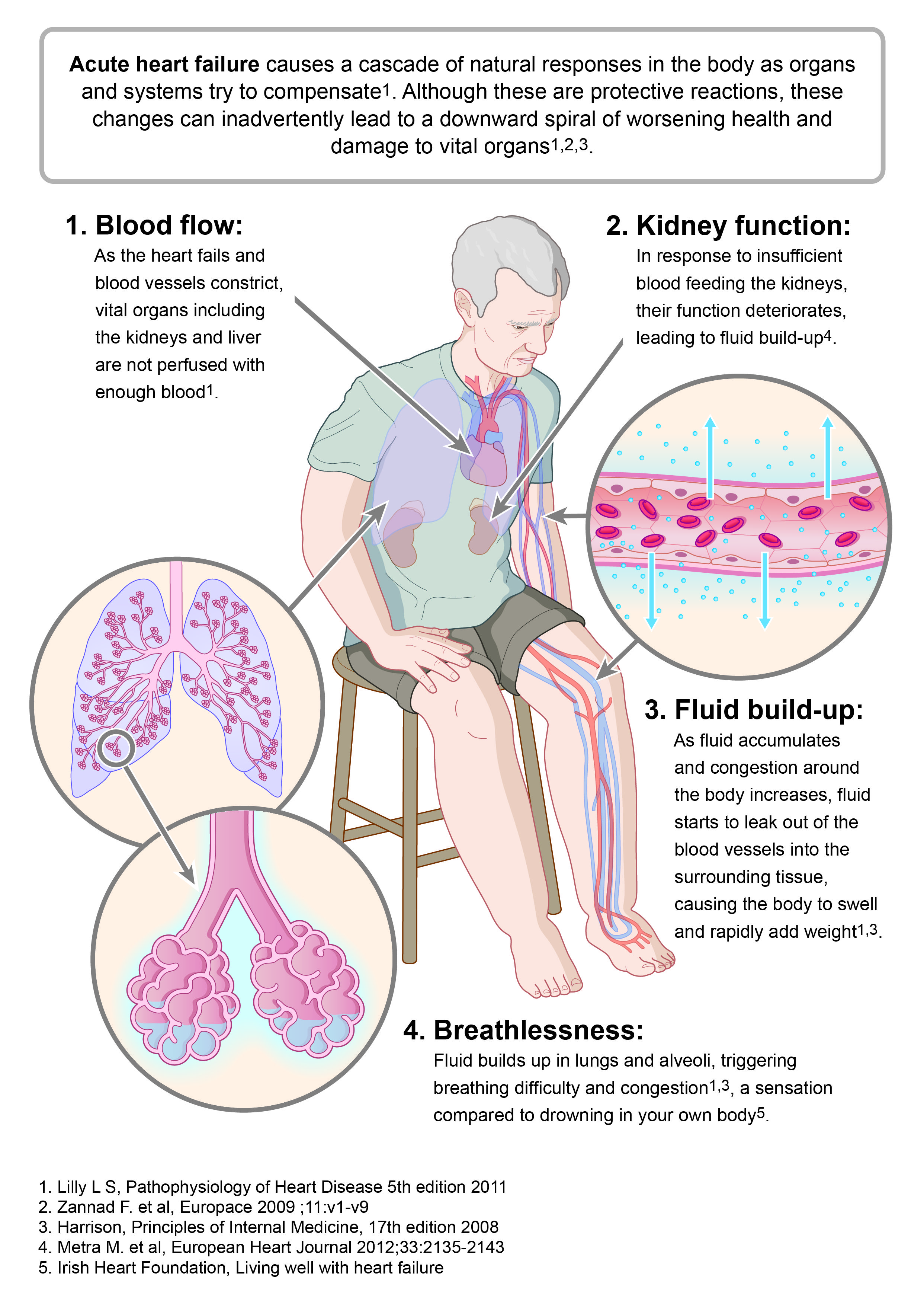congestive heart failure causes types and symptons Congestive heart failure is a heart condition that causes symptoms of shortness of breath, weakness, fatigue, and swelling of the legs, ankles, and feet the 13 signs of congestive heart failure you need to know.