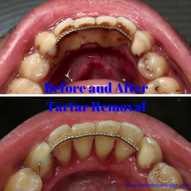 Smile Gallery Before And After Teeth Dental Plaque Removal