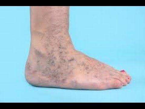 Remedios caseros para sacar las manchas de las piernas