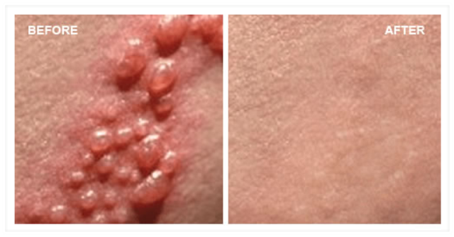 Stages of herpes rash