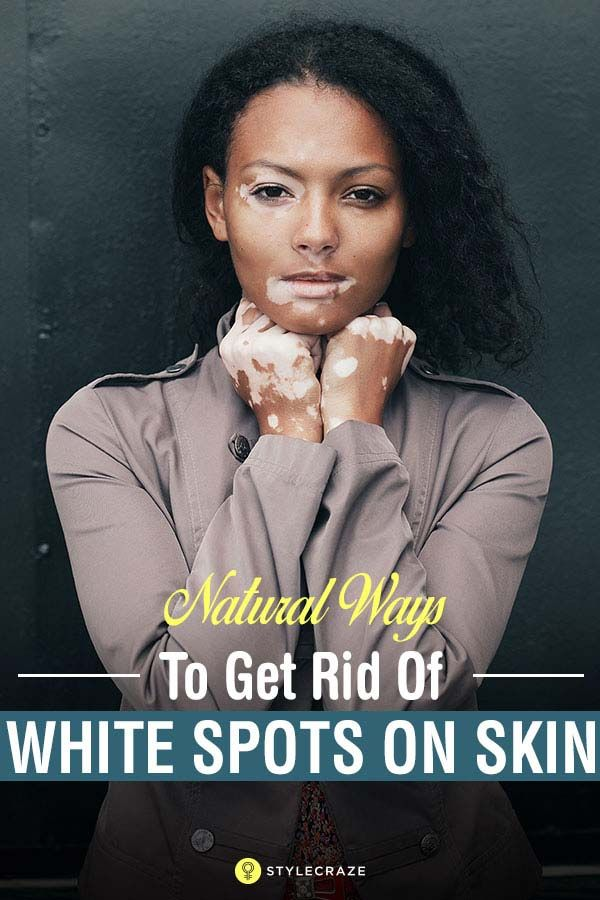 Well, don't lose heart! Vitiligo can be treated if diagnosed at an early stage.…