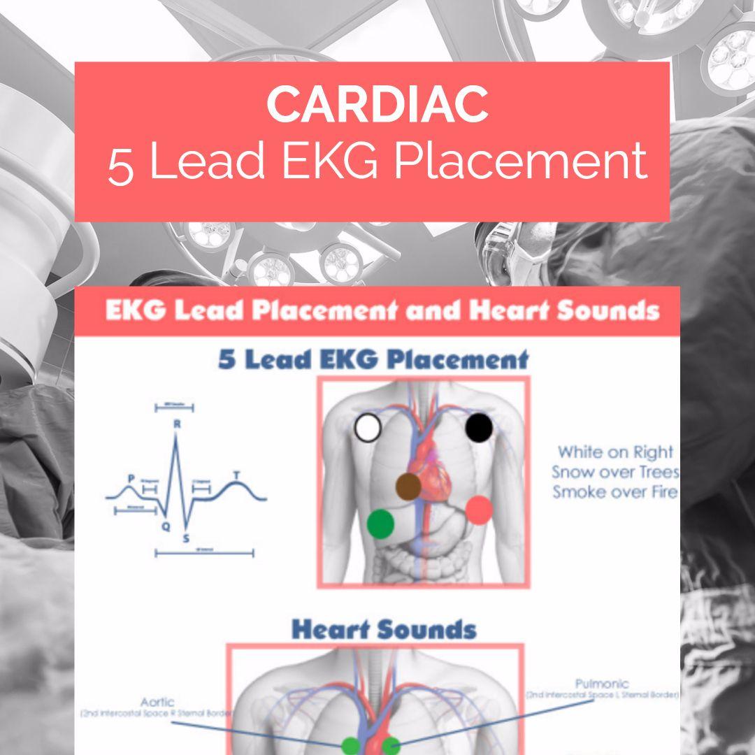 5 Lead Ekg Placement Cheatsheet