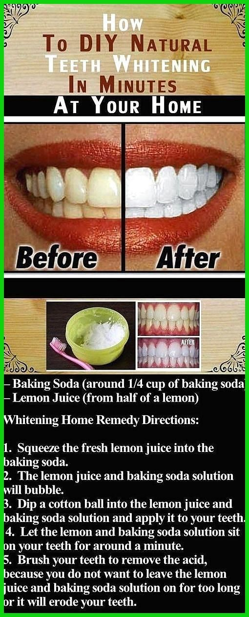 teeth whitening black diamond teeth whitening toothpaste reviews teeth whitening dentist recommended how to do teeth whitening at home in hind  teeth whitening black diamond teeth whitening toothpaste reviews teeth whitening dentist recommended how to do teeth whitening at home in hindi teeth whitening blue light instructions teeth whitening bradford 7 0 1 carbamide peroxide teeth whitening B #black #dentist #diamond #recommended #reviews #teeth #teethwhiteningdiywithlight #toothpaste #whitening #howtowhitenyourteeth