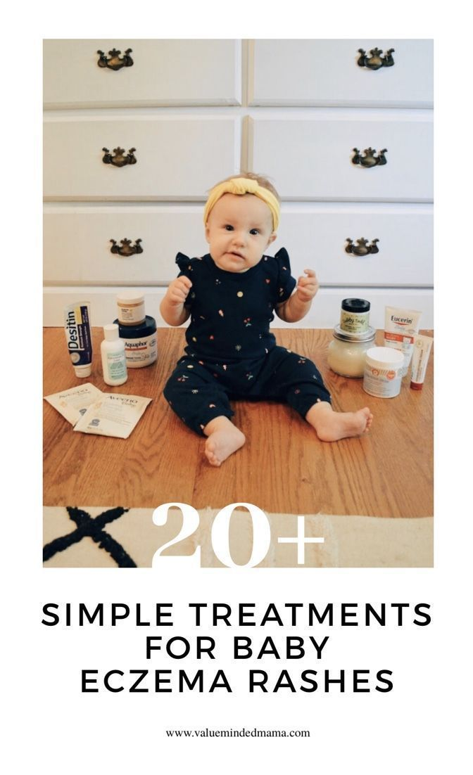 20+ Simple Treatments for Baby Eczema Rashes — Value Minded Mama