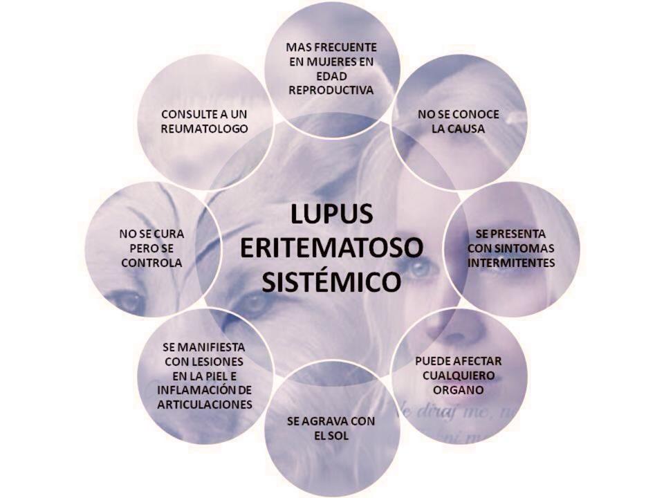 artritis T.B. eritematoso sistemico