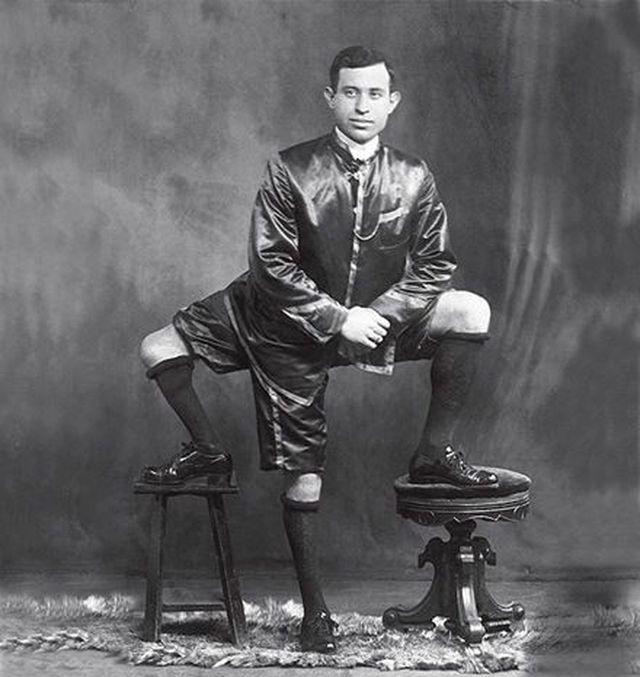 Francesco Lentini with 3 legs, 4 feet, 2 penises.