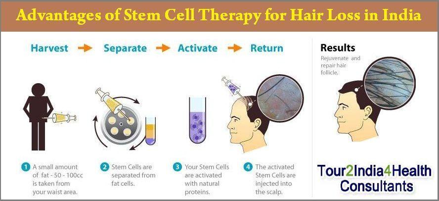 stem cells for hair restoration