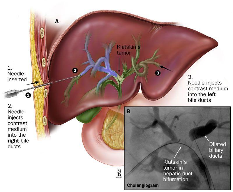 Johns Hopkins Liver Tumor Center: Bile Duct Cancer (Cholangiocarcinoma) | Bile duct cancer, Bile duct, Tumor