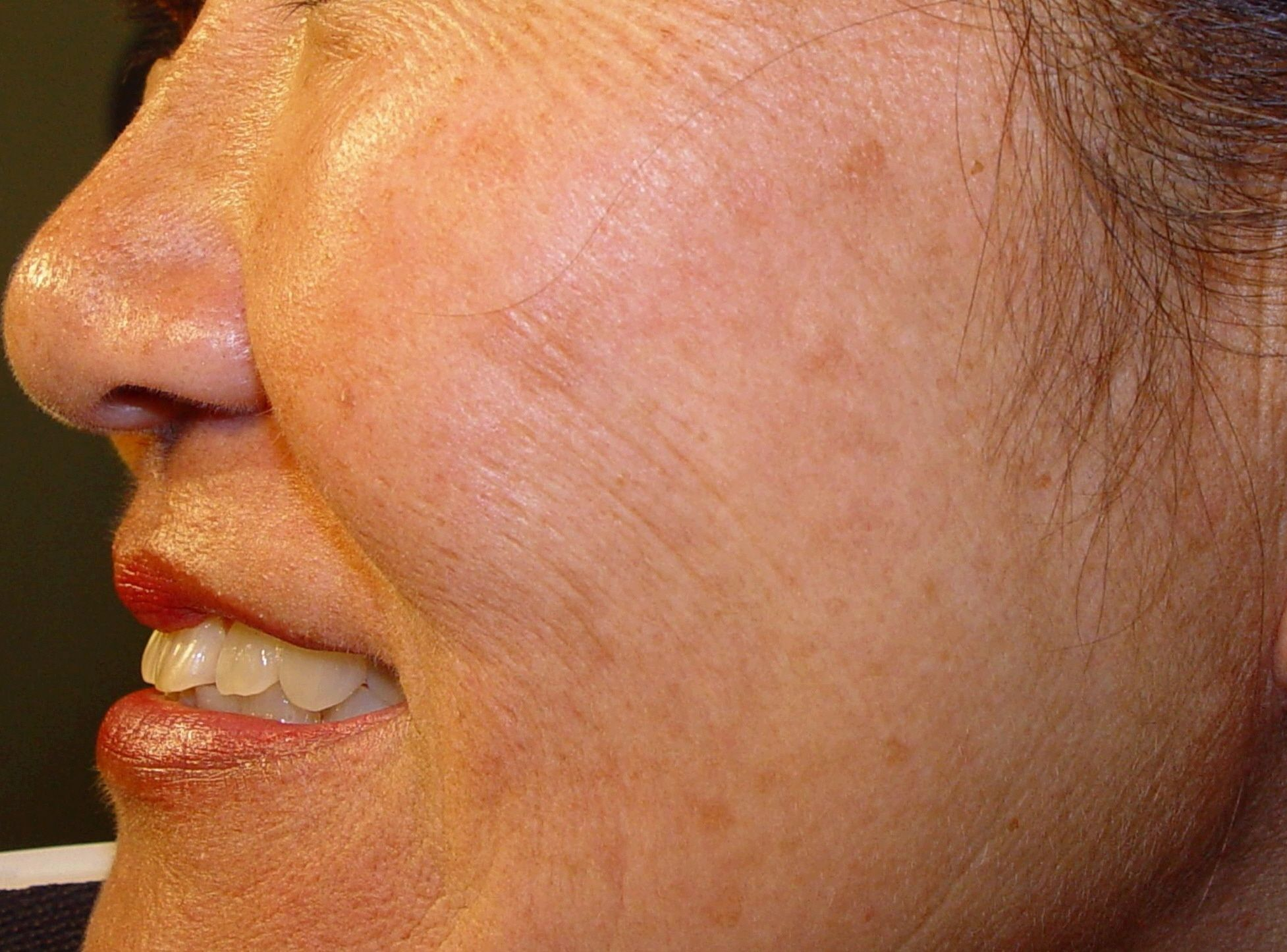 how to get rid of hyperpigmentation on face from acne