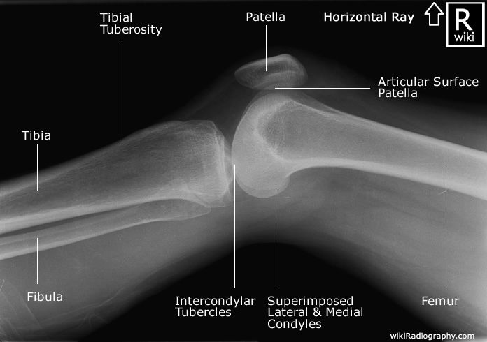 Radiographic Anatomy - Knee - Horizontal Ray Lateral | OCCUPATIONAL ...