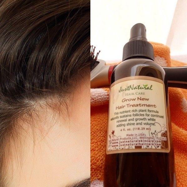 Grow New Hair Treatment Hair Treatment Promote Healthy Hair Growth Hair Nutrition
