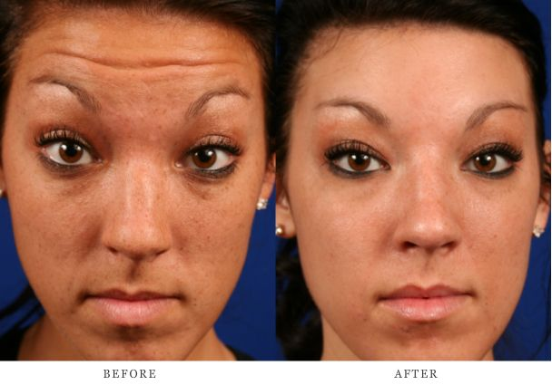 #Botox How to get rid of forehead wrinkles.  Cosmetic Surgeon Mid Missouri  www.baileyveinandskincare.com