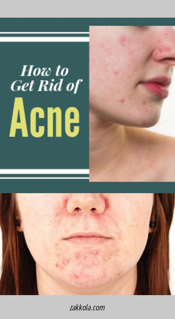 Click the link to learn more acne. Click the link for more info