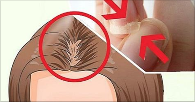 Las glándulas suprarrenales son estructuras situadas en la parte superior de cada riñón. Puede ser que te interese saber que estas glándulas pueden afectar la salud de tu cabello, las Uñas y hasta la calidad de tu sueño. Como dijimos anteriormente, las glándulas suprarrenales están situadas arriba de los riñones y son glándulas Endocrinas. Estas …