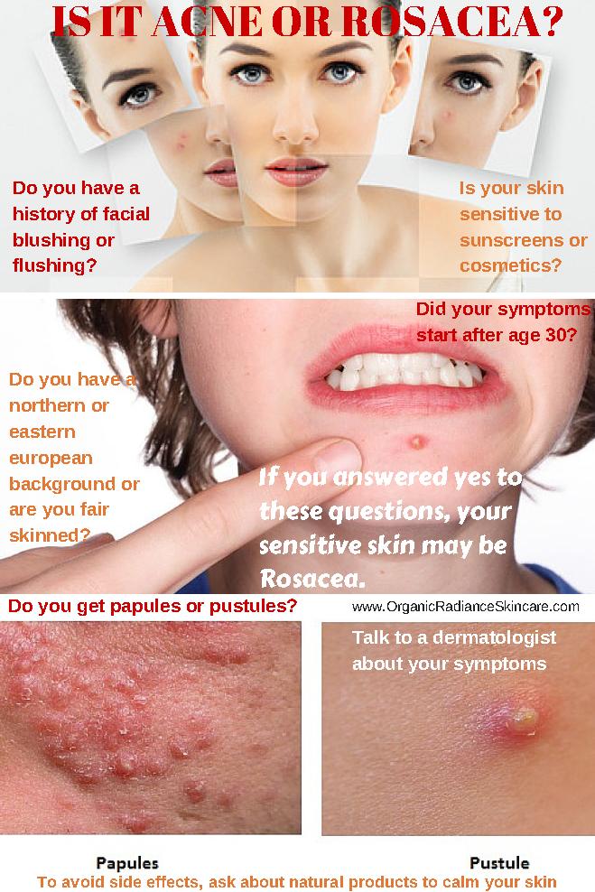 Blushing Cure Natural