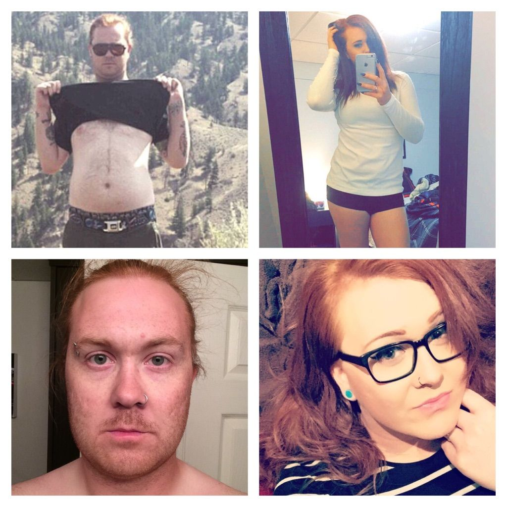 Two Years Ago And Today 27Yo, 2 Years Hrt And Down 25Ish -6432