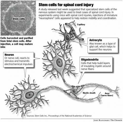 Human Stem Cell Trials for SCI Therapy Approved by FDA