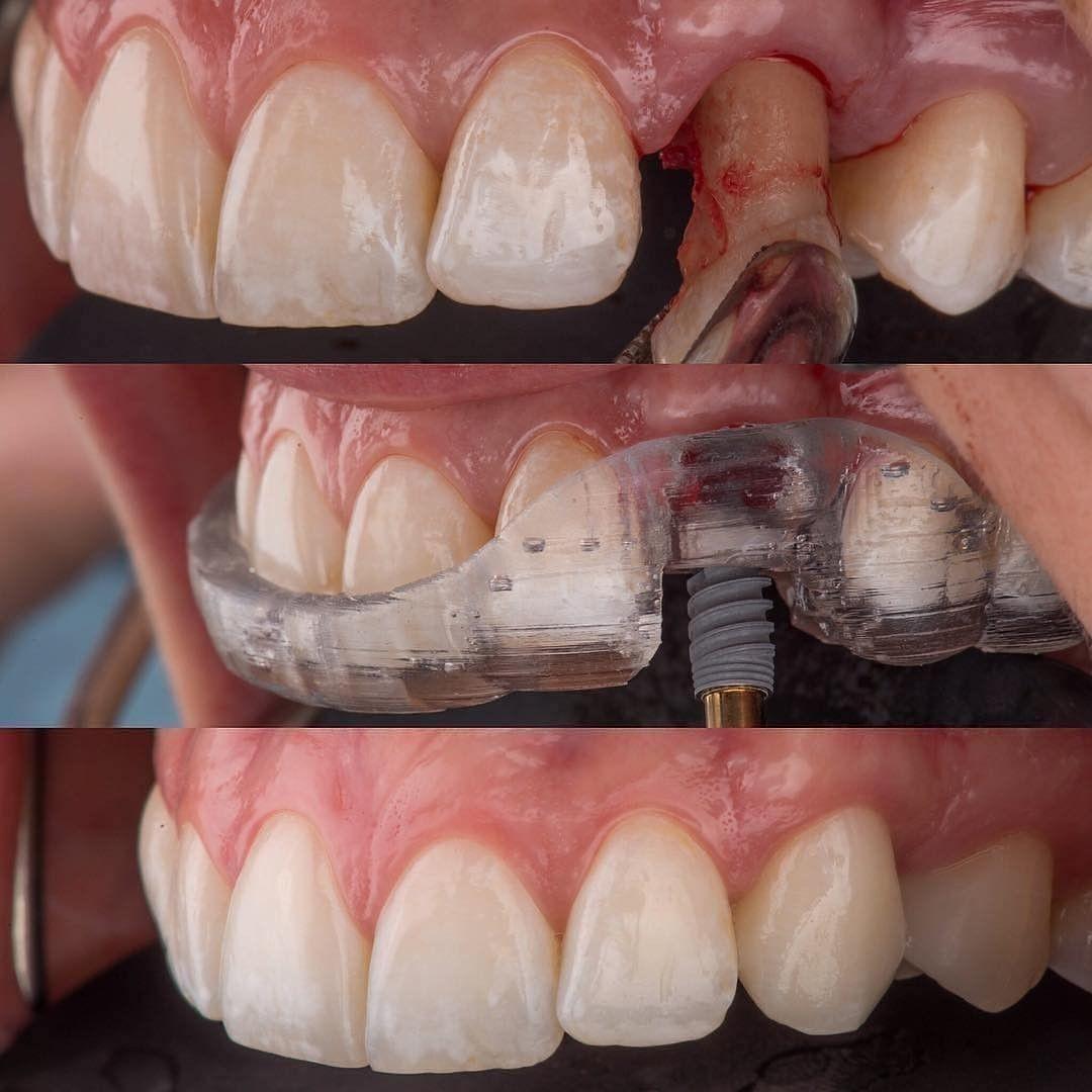 Dental Assistant Duties List%0A Exodontia do canino e implante caso by  dr pariente  dental  dentalanatomy   dentalassistant  dentalcare  Dentalhygiene  dentalpics  dentalschool