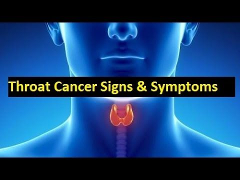 Signs and symptoms of throat cancer ! throat cancer symptoms