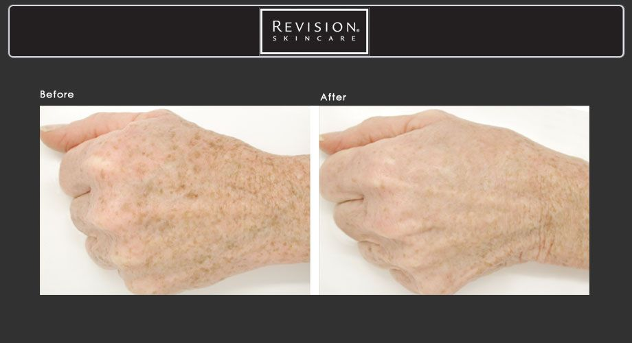 Take time off your hands with Revision Skin Care: Lumiquin. This rejuvenating nighttime formula is packed with powerful anti-aging ingredients and antioxidants. Lumiquin will brighten the skin and minimize the appearance of imperfections, enhance skin's moisture level, therefore the hands will look smoother, and this product will also support skin's natural moisture barrier. To purchase this product please stop in and see us or call, 714-840-4004