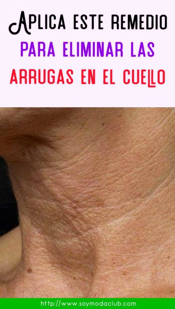 Como quitar arrugas en el cuello