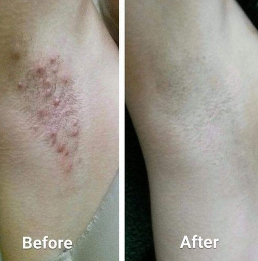 Tend Skin Care Solution To Be Your Therapist After A Traumatizing Shaving Session Smooth This On Post Shave To Dramatically Reduce Razor Burn And Unwanted Shav Tend Skin Shaving Bumps Skin Care